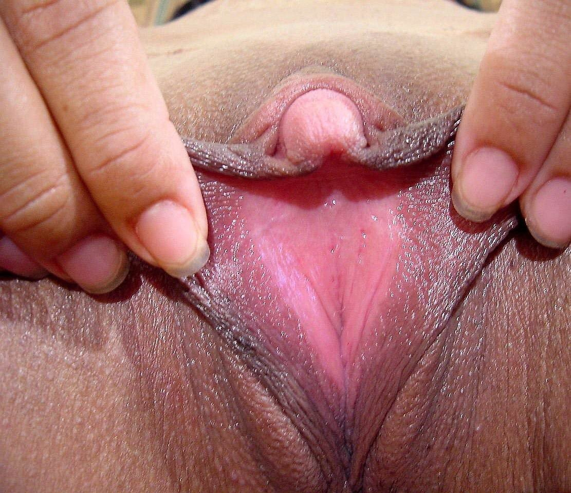 Excised clitoris, hot milf bush