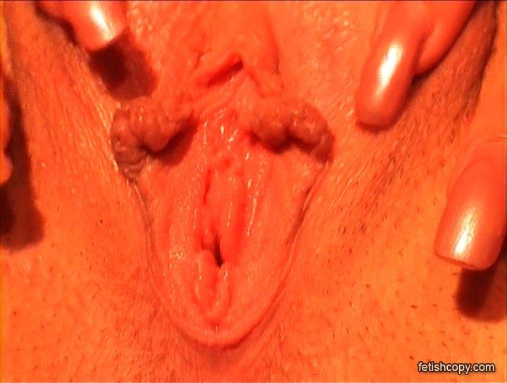 Большие половые губы - Фото галерея 1007663