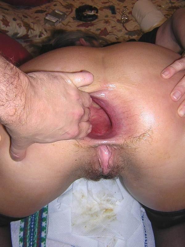 над дырочками последствия после секса в анального фото где
