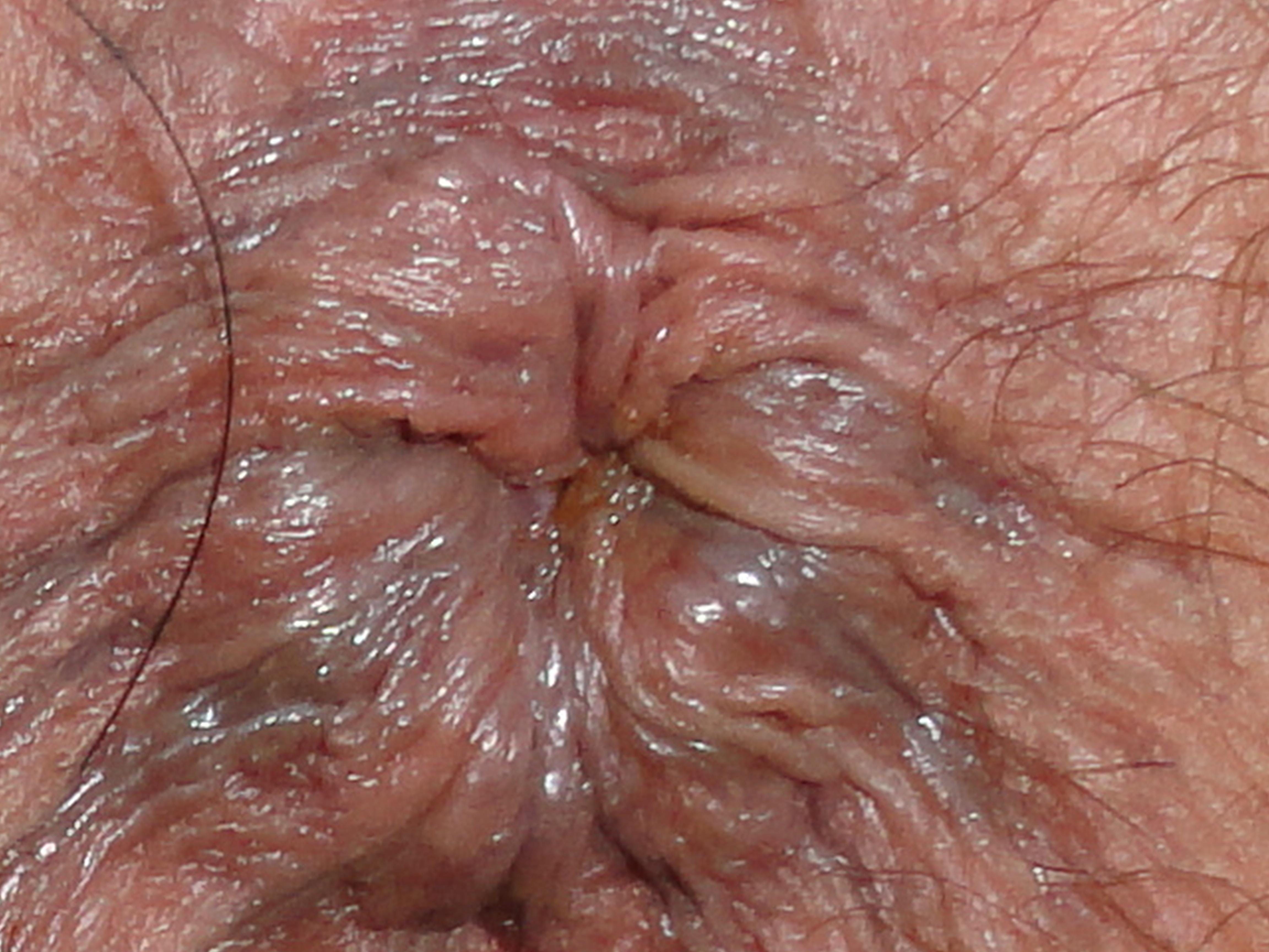 foto-dryahlih-anusov-ogromnim-chlenom-hudenkoy