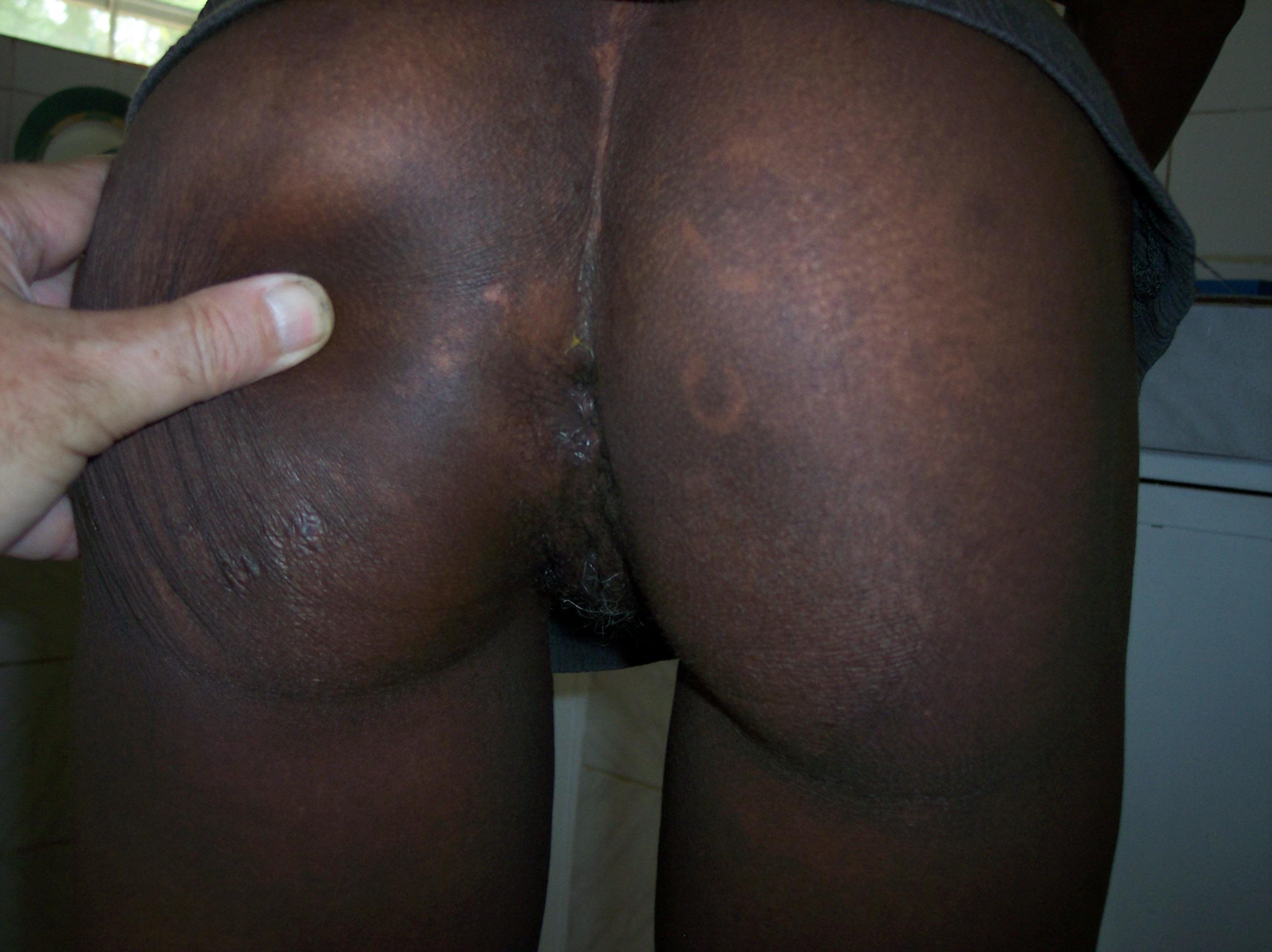 Pussy skinout, black tranny free porn post